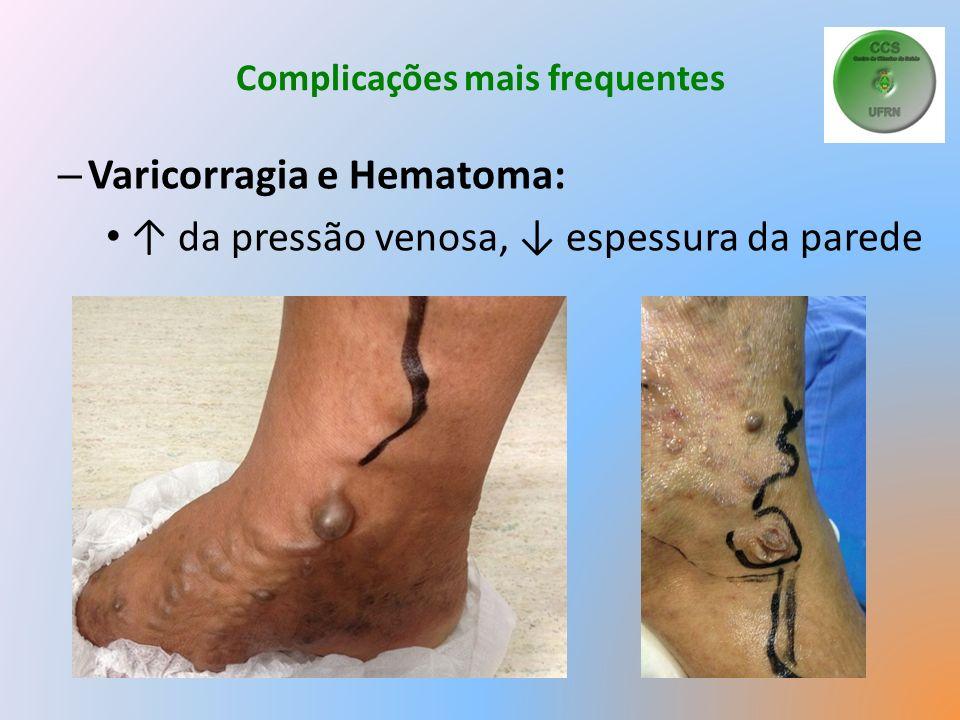 Complicações mais frequentes – Varicorragia e Hematoma: da pressão venosa, espessura da parede