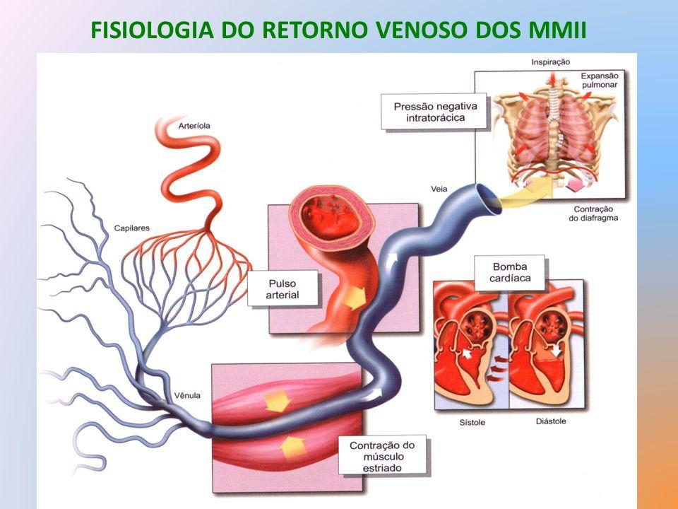 TROMBOFLEBITE SUPERFICIAL TRATAMENTOS Tratamento Clínico: Flebites na perna.
