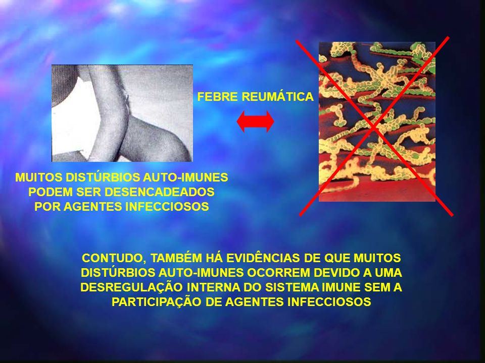 CLASSIFICAÇÃO DAS DOENÇAS AUTOIMUNES ÓRGÃOS ESPECÍFICAS – Aquelas nas quais a expressão da auto-imunidade é restrita a órgãos específicos do corpo; SISTÊMICAS – Aquelas em que muitos tecidos do corpo são afetados; TIREOIDITE DE HASHIMOTO DOENÇA DE GRAVES DIABETES TIPO 1 LÚPUS ERITEMATOSO SISTÊMICO SÍNDROME DE SJÖGREN