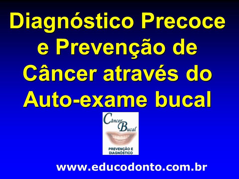 Diagnóstico Precoce e Prevenção de Câncer através do Auto-exame bucal www.educodonto.com.br
