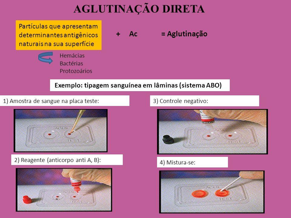 2) Reagente (anticorpo anti A, B): AGLUTINAÇÃO DIRETA 1) Amostra de sangue na placa teste: Exemplo: tipagem sanguínea em lâminas (sistema ABO) Partícu