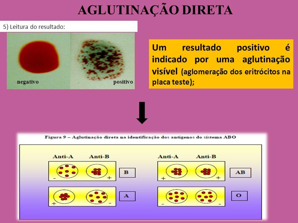 AGLUTINAÇÃO DIRETA 5) Leitura do resultado: negativo positivo Um resultado positivo é indicado por uma aglutinação visível (aglomeração dos eritrócito