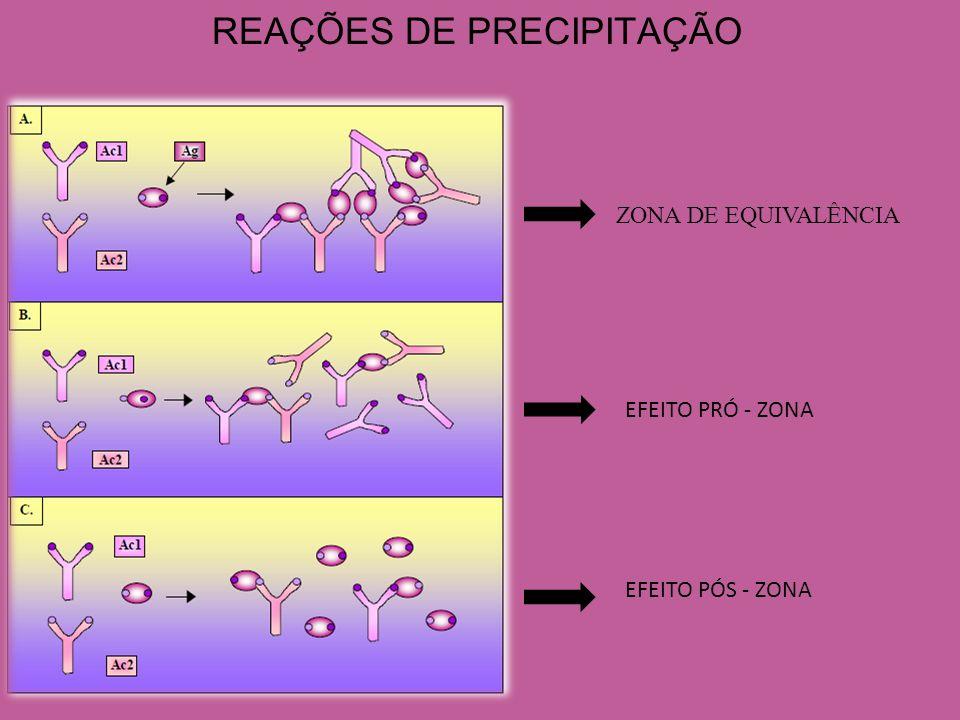 AGLUTINAÇÃO EM LÁTEX: FATOR REUMATÓIDE Fator Reumatóide: Anticorpos que reconhecem epítopos presentes na fração cristalizável (Fc) da molécula de IgG.