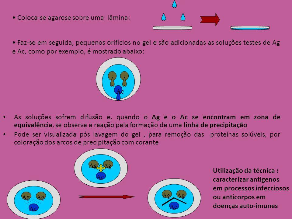 Interpretação – Diâmetro do anel é proporcional à concentração do Ag Método de Mancini – Anticorpo no gel – Antígeno no poço –Vice-versa IMUNODIFUSÃO RADIAL Ag Concentração Diameter 2 Ag Ac no gel