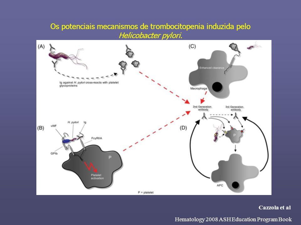 Eventos adversos ocorrendo em >1% dos pacientes independente da causa Evento adverso, n (%)Placebo (n=38)eltrombopag (n=76) Qualquer evento adverso14 (37)45 (59) Hemorragia*5 (13)7 (9) Dor de cabeça4 (11)6 (8) Nasofaringite3 (8)5 (7) Náusea–6 (8) Diarréia1 (3)4 (5) Aumento de proteínas totais1 (3)3 (4) Vômito–4 (5) Artralgia1 (3)2 (3) Fadiga–3 (4) Mialgia–3 (4) Distensão abdominal1 (3)1 (1) Dor na parte superior do abdomen1 (3)1 (1) *Todos os eventos de sangramento foram incluídos 25.