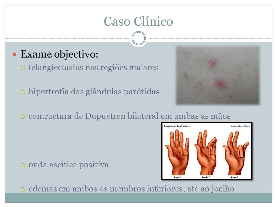 Caso Clínico Exame objectivo: telangiectasias nas regiões malares hipertrofia das glândulas parótidas contractura de Dupuytren bilateral em ambas as mãos onda ascítica positiva edemas em ambos os membros inferiores, até ao joelho