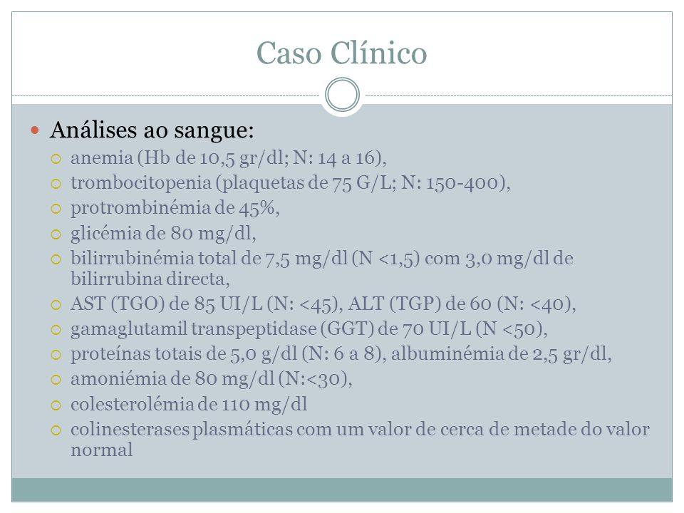 Caso Clínico Análises ao sangue: anemia (Hb de 10,5 gr/dl; N: 14 a 16), trombocitopenia (plaquetas de 75 G/L; N: 150-400), protrombinémia de 45%, glicémia de 80 mg/dl, bilirrubinémia total de 7,5 mg/dl (N <1,5) com 3,0 mg/dl de bilirrubina directa, AST (TGO) de 85 UI/L (N: <45), ALT (TGP) de 60 (N: <40), gamaglutamil transpeptidase (GGT) de 70 UI/L (N <50), proteínas totais de 5,0 g/dl (N: 6 a 8), albuminémia de 2,5 gr/dl, amoniémia de 80 mg/dl (N:<30), colesterolémia de 110 mg/dl colinesterases plasmáticas com um valor de cerca de metade do valor normal