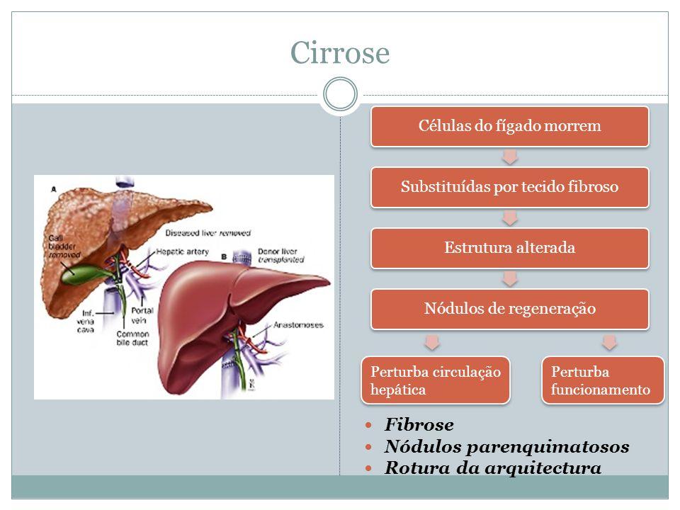 Etiologia Á LCOOL E H EPATITE B, C (H.B é pouco frequente em Portugal); >90% casos Hepatite auto-imune Obstrução Biliar: situações congénitas (atrésia biliar), hereditárias (ex.