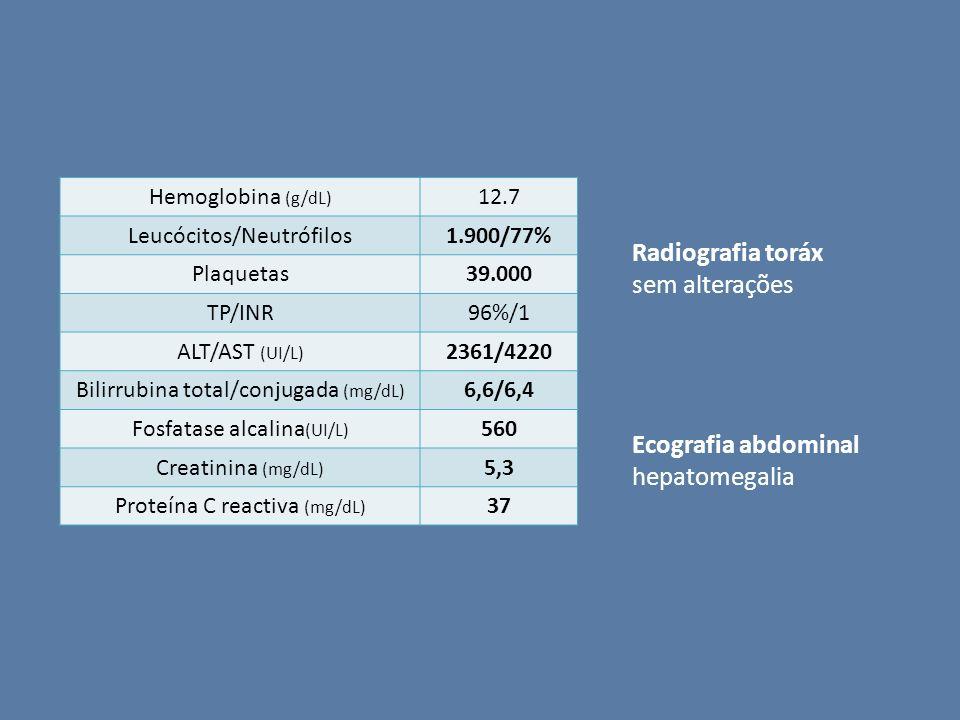 Hemoglobina (g/dL) 12.7 Leucócitos/Neutrófilos1.900/77% Plaquetas39.000 TP/INR96%/1 ALT/AST (UI/L) 2361/4220 Bilirrubina total/conjugada (mg/dL) 6,6/6