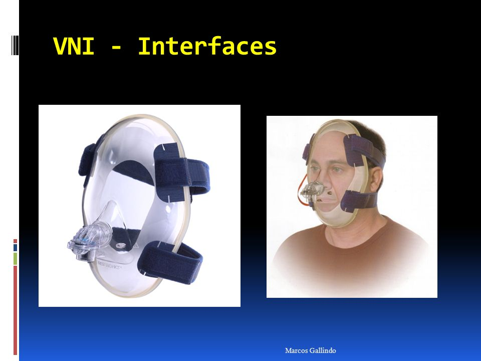 VNI - Interfaces