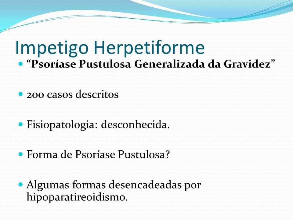 Impetigo Herpetiforme Psoríase Pustulosa Generalizada da Gravidez 200 casos descritos Fisiopatologia: desconhecida. Forma de Psoríase Pustulosa? Algum