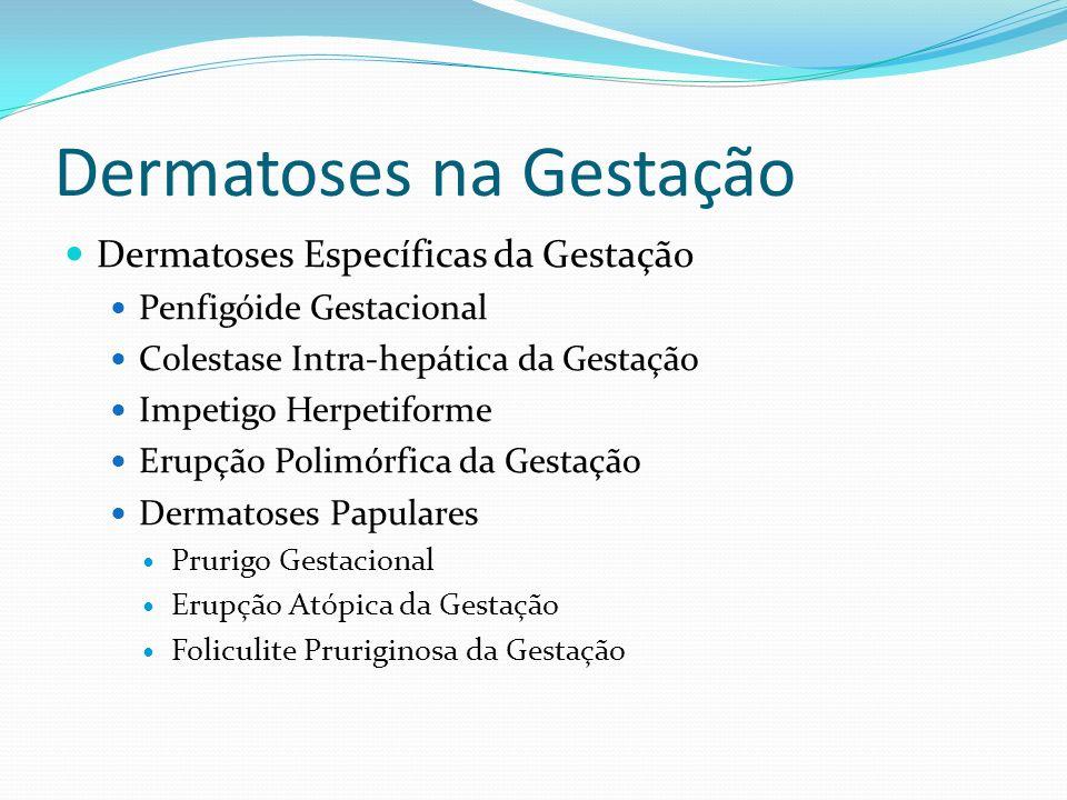 Colestase Intra-hepática Prognóstico Materno: Melhora do prurido 1-2 dias pós-parto Risco de recorrência Gestações subsequentes (70%) ACO oral