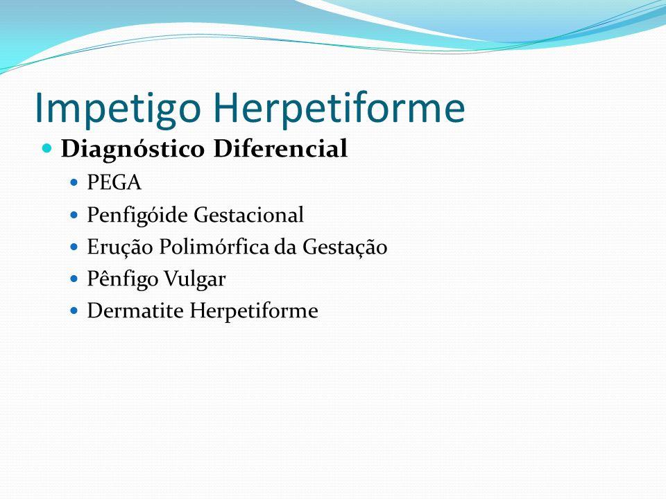 Impetigo Herpetiforme Diagnóstico Diferencial PEGA Penfigóide Gestacional Erução Polimórfica da Gestação Pênfigo Vulgar Dermatite Herpetiforme