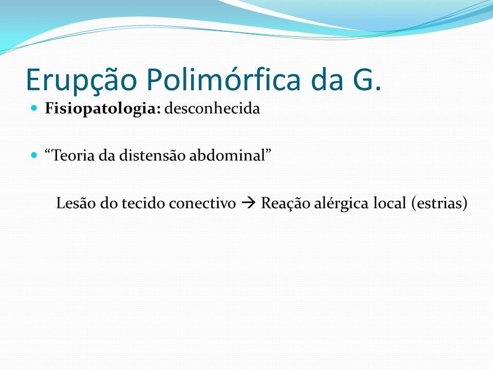 Erupção Polimórfica da G. Fisiopatologia: desconhecida Teoria da distensão abdominal Lesão do tecido conectivo Reação alérgica local (estrias)