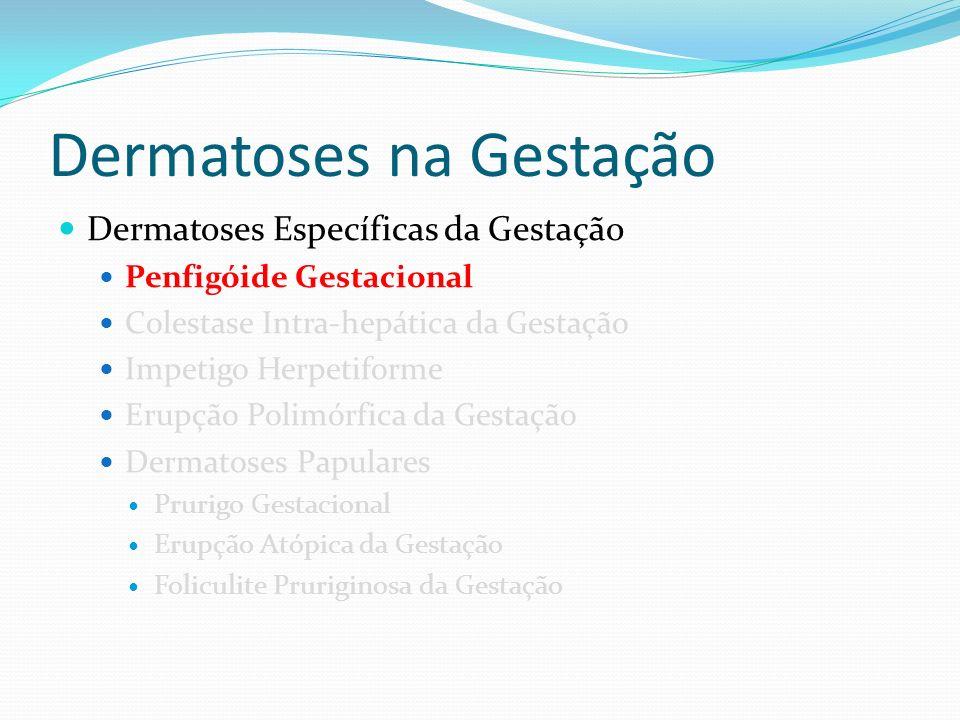 Dermatoses na Gestação Dermatoses Específicas da Gestação Penfigóide Gestacional Colestase Intra-hepática da Gestação Impetigo Herpetiforme Erupção Polimórfica da Gestação Dermatoses Papulares Prurigo Gestacional Erupção Atópica da Gestação Foliculite Pruriginosa da Gestação