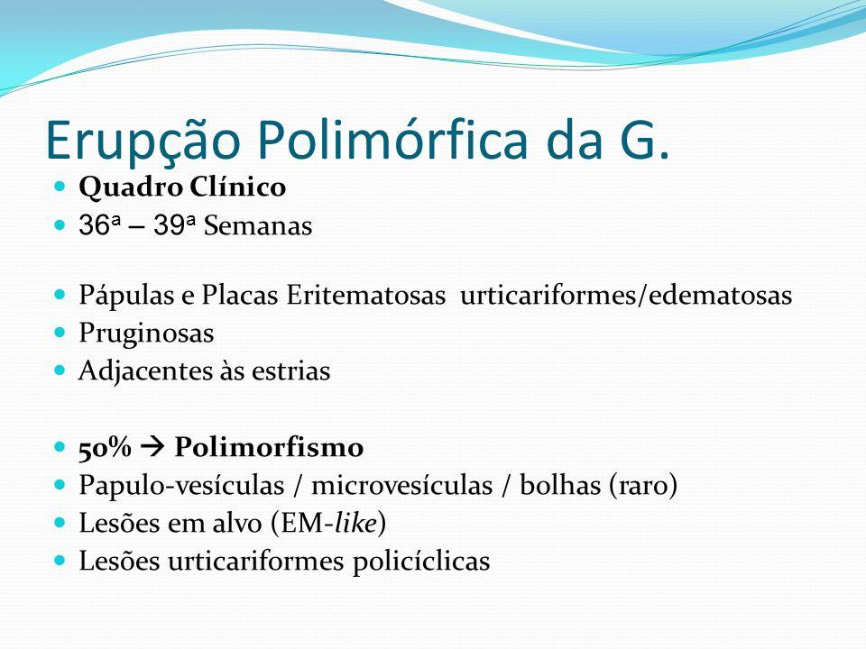 Erupção Polimórfica da G. Quadro Clínico 36 a – 39 a Semanas Pápulas e Placas Eritematosas urticariformes/edematosas Pruginosas Adjacentes às estrias