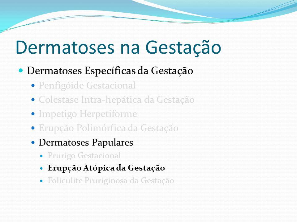 Dermatoses na Gestação Dermatoses Específicas da Gestação Penfigóide Gestacional Colestase Intra-hepática da Gestação Impetigo Herpetiforme Erupção Po