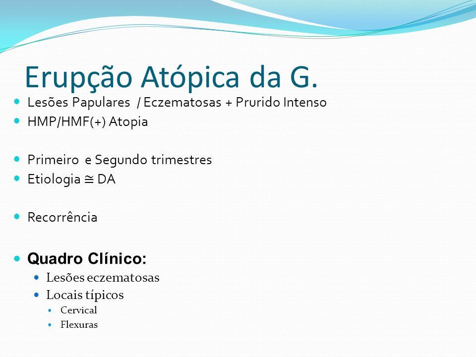 Erupção Atópica da G. Lesões Papulares / Eczematosas + Prurido Intenso HMP/HMF(+) Atopia Primeiro e Segundo trimestres Etiologia DA Recorrência Quadro