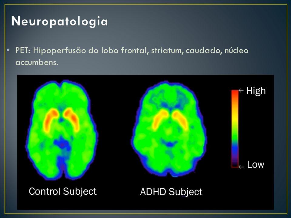 PET: Hipoperfusão do lobo frontal, striatum, caudado, núcleo accumbens.