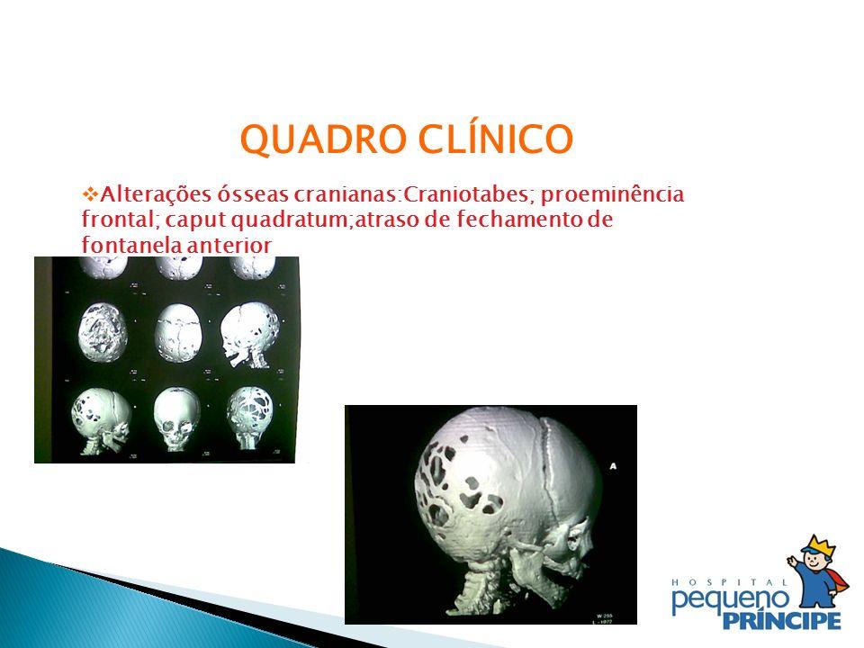 QUADRO CLÍNICO Alterações ósseas cranianas:Craniotabes; proeminência frontal; caput quadratum;atraso de fechamento de fontanela anterior