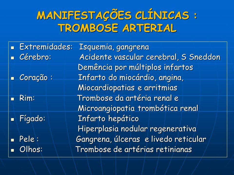MANIFESTAÇÕES CLÍNICAS : TROMBOSE ARTERIAL Extremidades: Isquemia, gangrena Extremidades: Isquemia, gangrena Cérebro: Acidente vascular cerebral, S Sn