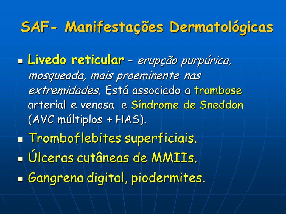 SAF- Manifestações Dermatológicas Livedo reticular - erupção purpúrica, mosqueada, mais proeminente nas extremidades. Está associado a trombose arteri