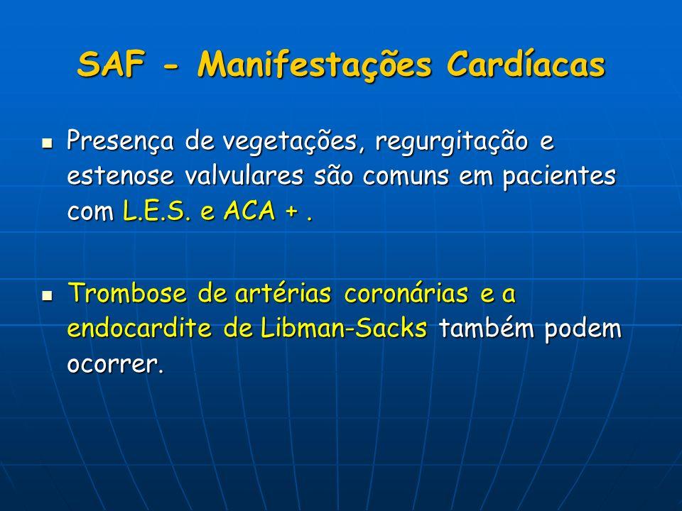 SAF - Manifestações Cardíacas Presença de vegetações, regurgitação e estenose valvulares são comuns em pacientes com L.E.S. e ACA +. Presença de veget