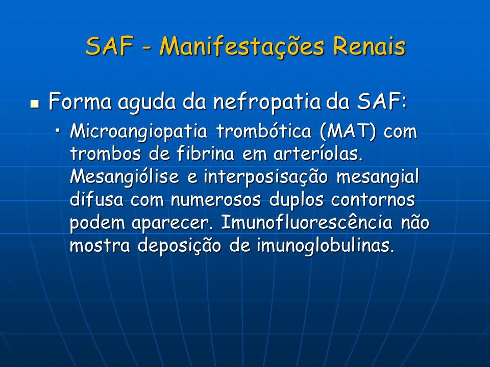 SAF - Manifestações Renais Forma aguda da nefropatia da SAF: Forma aguda da nefropatia da SAF: Microangiopatia trombótica (MAT) com trombos de fibrina