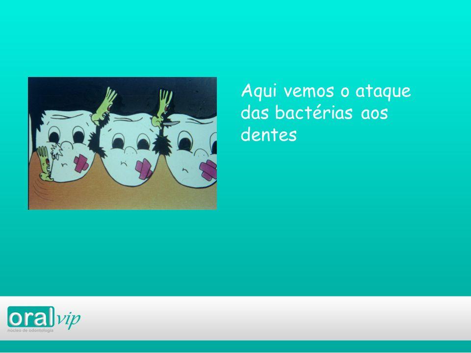 Aqui vemos o ataque das bactérias aos dentes
