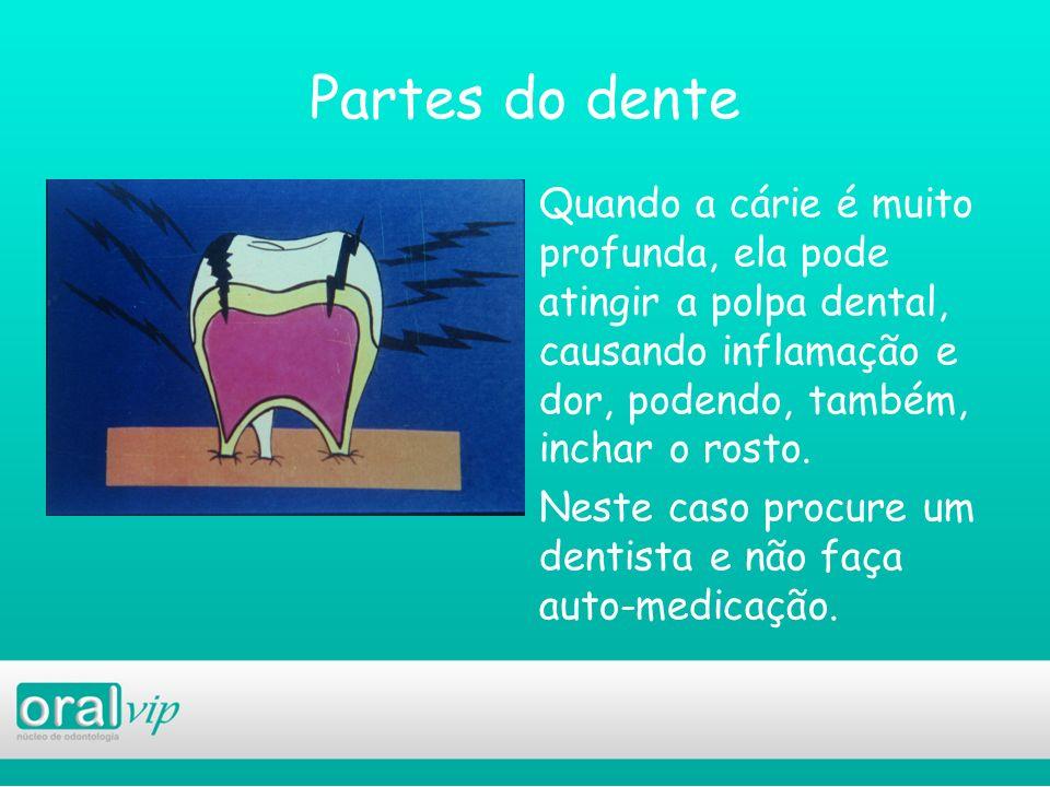Partes do dente Quando a cárie é muito profunda, ela pode atingir a polpa dental, causando inflamação e dor, podendo, também, inchar o rosto. Neste ca