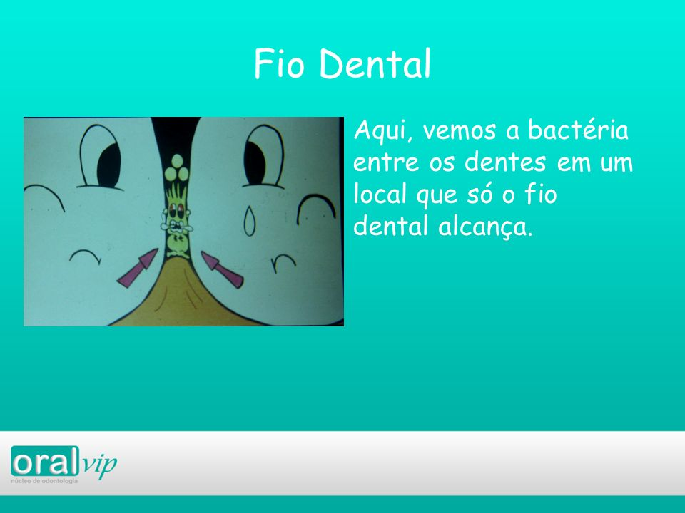 Fio Dental Aqui, vemos a bactéria entre os dentes em um local que só o fio dental alcança.