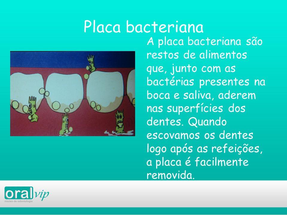 Placa bacteriana A placa bacteriana são restos de alimentos que, junto com as bactérias presentes na boca e saliva, aderem nas superfícies dos dentes.