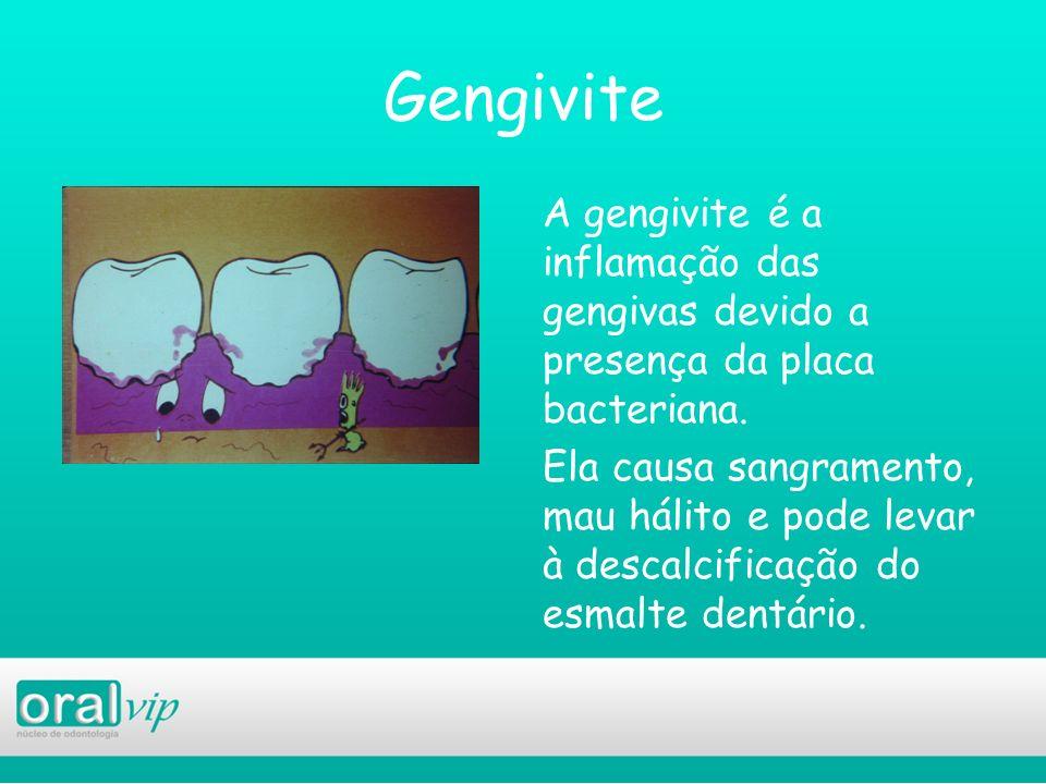Gengivite A gengivite é a inflamação das gengivas devido a presença da placa bacteriana. Ela causa sangramento, mau hálito e pode levar à descalcifica