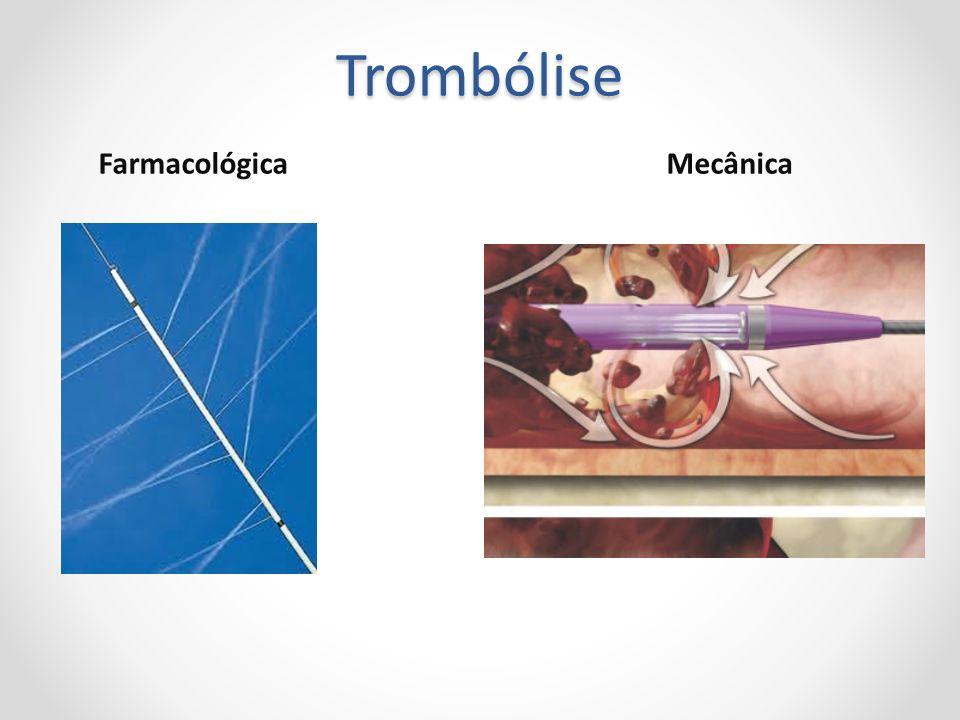 Trombólise FarmacológicaMecânica