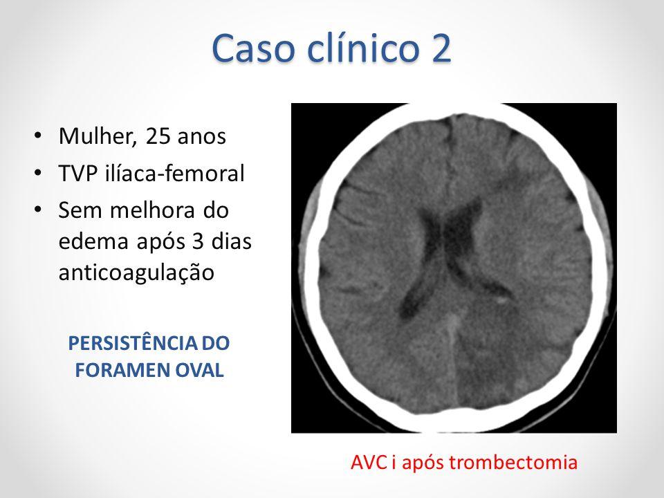 Caso clínico 2 Mulher, 25 anos TVP ilíaca-femoral Sem melhora do edema após 3 dias anticoagulação PERSISTÊNCIA DO FORAMEN OVAL AVC i após trombectomia