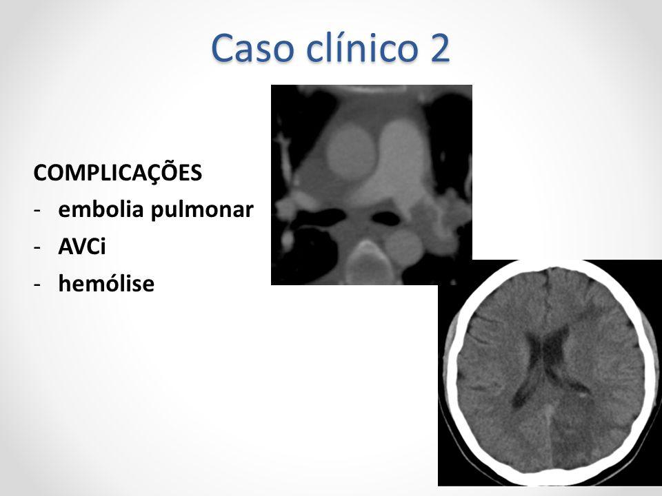Caso clínico 2 COMPLICAÇÕES -embolia pulmonar -AVCi -hemólise