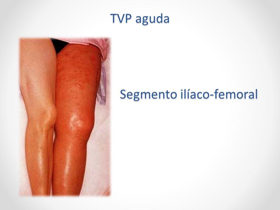 TVP aguda Segmento ilíaco-femoral
