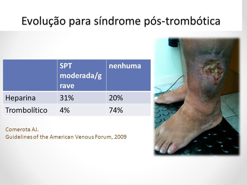 Evolução para síndrome pós-trombótica SPT moderada/g rave nenhuma Heparina31%20% Trombolítico4%74% Comerota AJ. Guidelines of the American Venous Foru