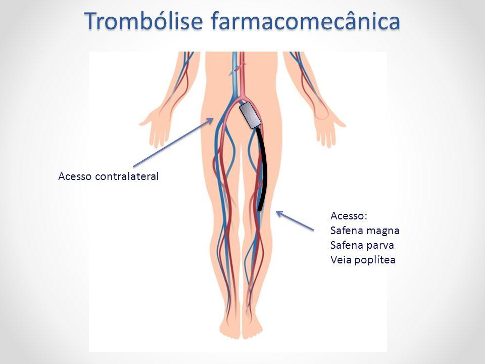 Acesso: Safena magna Safena parva Veia poplítea Trombólise farmacomecânica Acesso contralateral