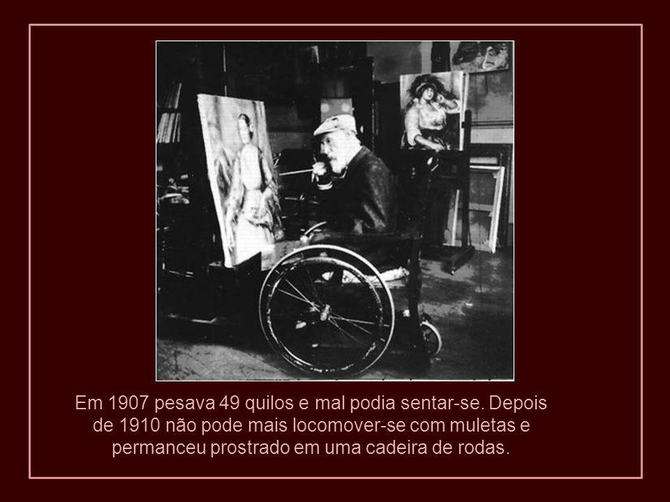 À esquerda: Renoir em 1915. A imagem mostra a caquexia reumatóide. À direita: podemos ver a magreza de seu rosto no
