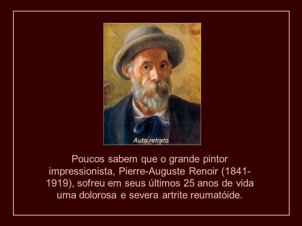 Poucos sabem que o grande pintor impressionista, Pierre-Auguste Renoir (1841- 1919), sofreu em seus últimos 25 anos de vida uma dolorosa e severa artrite reumatóide.