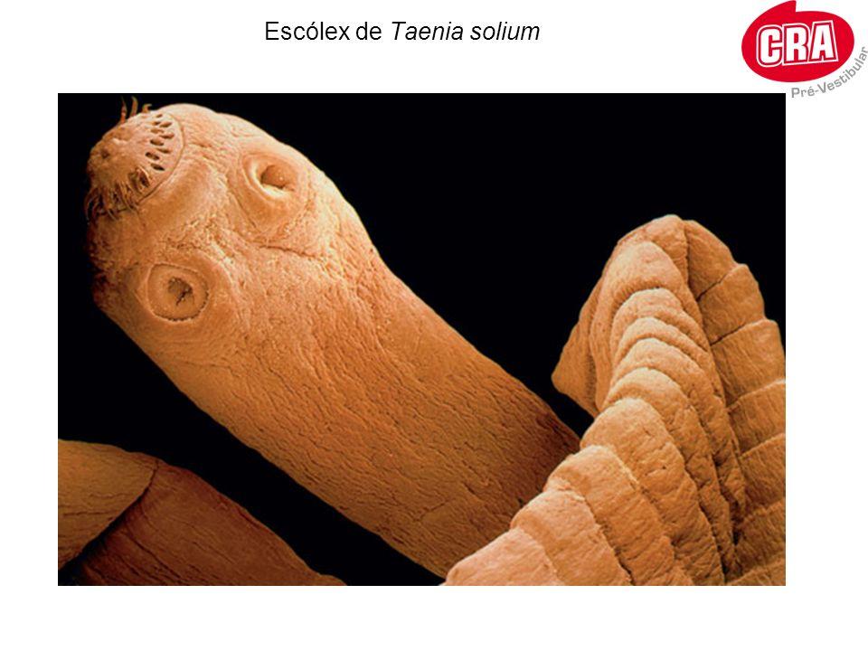 Escólex de Taenia solium