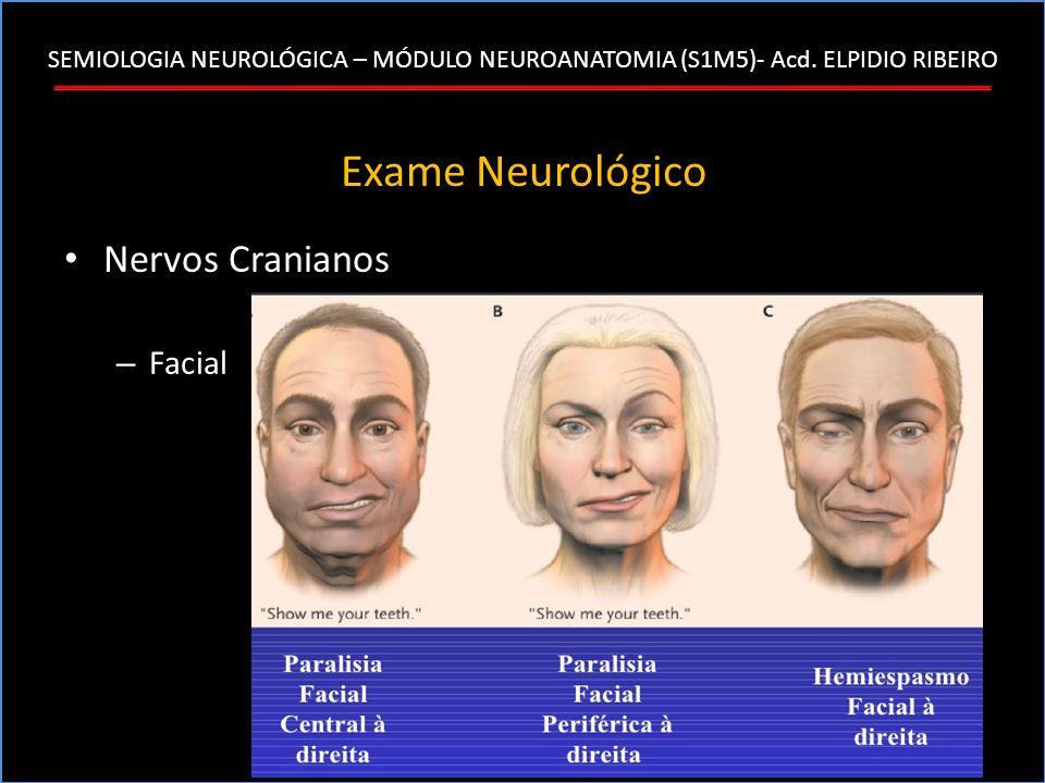 SEMIOLOGIA NEUROLÓGICA – MÓDULO NEUROANATOMIA (S1M5)- Acd. ELPIDIO RIBEIRO Exame Neurológico Nervos Cranianos – Facial