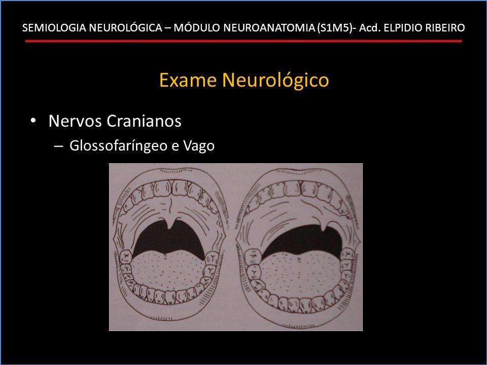 SEMIOLOGIA NEUROLÓGICA – MÓDULO NEUROANATOMIA (S1M5)- Acd. ELPIDIO RIBEIRO Exame Neurológico Nervos Cranianos – Glossofaríngeo e Vago