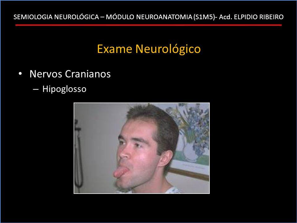 SEMIOLOGIA NEUROLÓGICA – MÓDULO NEUROANATOMIA (S1M5)- Acd. ELPIDIO RIBEIRO Exame Neurológico Nervos Cranianos – Hipoglosso