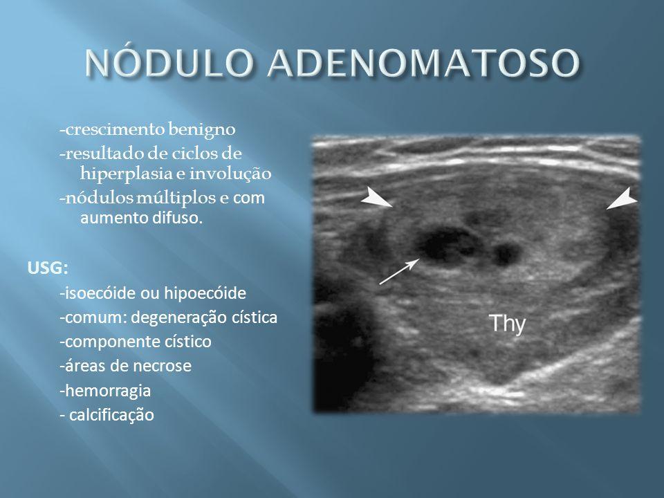 -crescimento benigno -resultado de ciclos de hiperplasia e involução -nódulos múltiplos e com aumento difuso. USG: -isoecóide ou hipoecóide -comum: de
