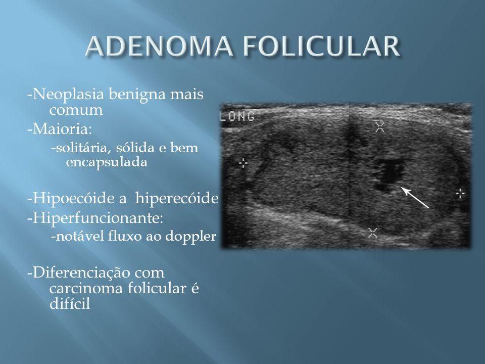 -Neoplasia benigna mais comum -Maioria: -solitária, sólida e bem encapsulada -Hipoecóide a hiperecóide -Hiperfuncionante: -notável fluxo ao doppler -D