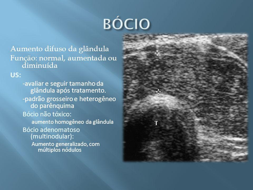 Aumento difuso da glândula Função: normal, aumentada ou diminuída US: -avaliar e seguir tamanho da glândula após tratamento. -padrão grosseiro e heter