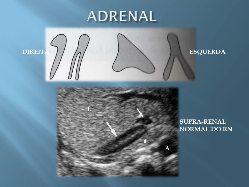 Local extra-adrenal: -órgão de Zuckerkandl (próximo a bifurcação aórtica) -bexiga -cadeia simpática para-aórtica RM: -método de escolha.