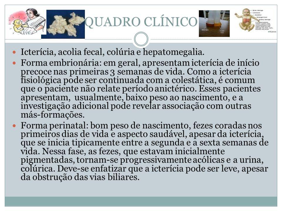 QUADRO CLÍNICO Icterícia, acolia fecal, colúria e hepatomegalia. Forma embrionária: em geral, apresentam icterícia de início precoce nas primeiras 3 s